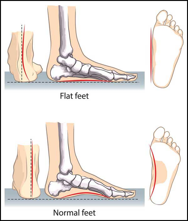 how to pick the best shoes for flat feet